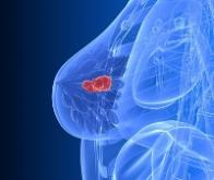 Diagnostic du cancer du sein : l'ordinateur fait presque aussi bien que le radiologue !