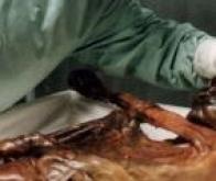 Du sang retrouvé sur l'homme des glaces