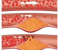 Santé cardio-vasculaire : Quelle est la vérité pour le cholestérol ?