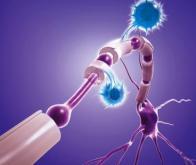 Sclérose en plaques : vers un tournant thérapeutique