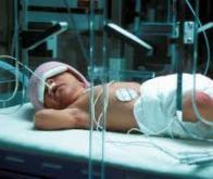 Enfants prématurés : prévenir les lésions cérébrales avec une hormone