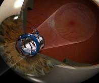 Google prépare un oeil électronique implantable