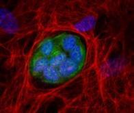Identification d'une nouvelle cible contre le cancer ?