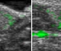 Imagerie biomédicale à résolution microscopique : la révolution des ultrasons