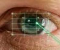 La cataracte bientôt opérée au laser