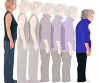 La densité osseuse pourrait être un marqueur de la maladie d'Alzheimer