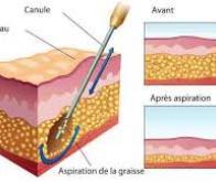 La liposuccion, nouvelle arme contre la maladie d'Alzheimer ?