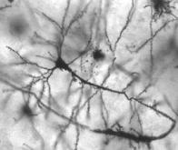 La neurogenèse tout au long de la vie prouvée grâce aux essais nucléaires