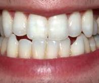 La perte des dents, première étape vers la démence…