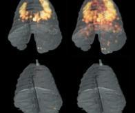 La tuberculose sera-t-elle le nouveau fléau du siècle ?
