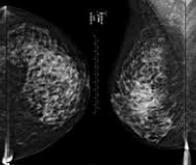 L'Américain iCAD développe un logiciel de prédiction du cancer du sein à deux ans