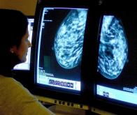 Le cancer du sein mieux pris en charge grâce à la médecine prédictive