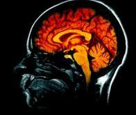 Le cerveau de l'homme flirte avec la physique quantique