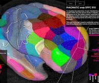 Le cerveau posséderait une structure dynamique universelle…