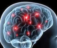 Le cerveau se modifie constamment pour rendre le trafic neuronal plus fluide