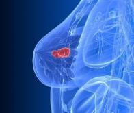 Les micro-ondes s'imposent dans la détection du cancer