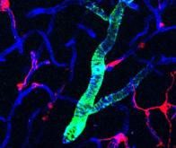 Les péricytes, un levier possible pour agir à la phase précoce de la maladie d'Alzheimer