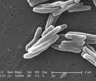 Les virus seront-ils les antibiotiques du futur ?