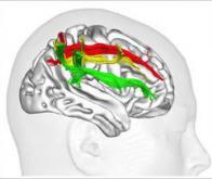 L'hémisphère droit : cerveau de l'attention visuospatiale