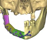 L'impression 3D pour reconstruire la mâchoire