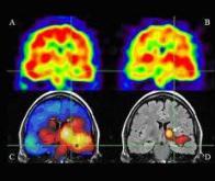 L'incidence de l'épilepsie en nette diminution ?