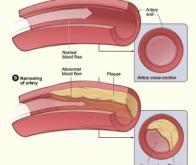 L'inflammation artérielle prédictive d'événements coronariens chez le sujet âgé
