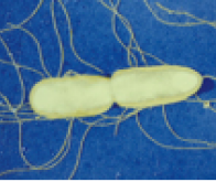 L'inquiétante émergence d'une salmonelle multirésistante aux antibiotiques