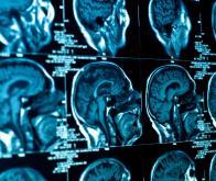 L'IRM quantitative pour prévoir le réveil des patients dans le coma après un arrêt cardiaque