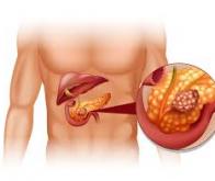 L'obésité à l'adolescence augmenterait le risque futur de cancer du pancréas