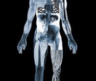 L'omni-tomographie veut fusionner l'IRM et le scanner