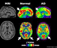 Maladie d'Alzheimer : évaluer par imagerie la perte synaptique chez les malades
