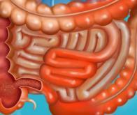 Maladie de Crohn : un champignon identifié comme facteur clé de l'inflammation