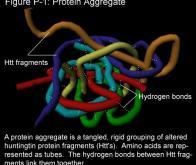 Maladie de Huntington : des anomalies cérébrales détectables dès le stade embryonnaire