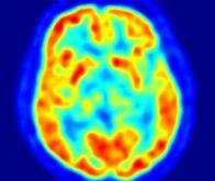Maladie de Parkinson : une nouvelle avancée grâce aux cellules-souches
