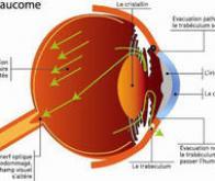 Mieux cibler les origines du glaucome pour préserver la vue