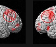 Mieux comprendre les déficits de mémoire des patients schizophrènes et des sujets sains âgés