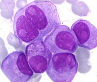 Myélome multiple : une avancée majeure