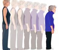 Ostéoporose : préserver l'équilibre entre formation et destruction de l'os !