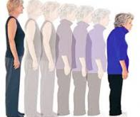 Ostéoporose : un médicament contre les fractures protègerait aussi le cœur