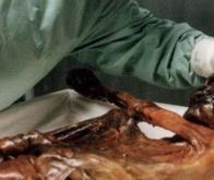 Ötzi était-il cardiaque ?