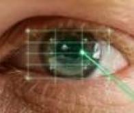 Première intervention chirurgicale robotisée à l'intérieur de l'œil