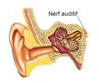 Première mondiale : une implantation réussie du nerf auditif chez des enfants