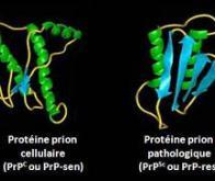 Première thérapie à l'essai contre une maladie à prions