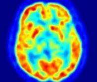 Protéger des effets indésirables de la chimiothérapie contre le cancer du cerveau
