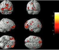 Quand l'activité de notre cerveau révèle nos émotions