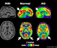 Quel rôle jouent les cellules immunitaires du cerveau dans la maladie d'Alzheimer ?