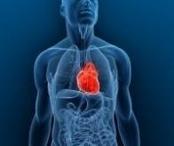 Réduire les effets d'une crise cardiaque de 50 % ?