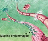 Sclérose en plaque : démarrage d'un essai clinique à l'aide de cellules souches