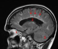 Sclérose en plaques : un nouveau médicament à l'essai