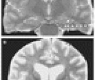 Stimuler le cerveau améliore la mémoire